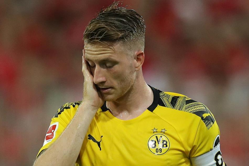 Cedera Pangkal Paha Parah, Marco Reus Terancam Tutup Musim Lebih Awal